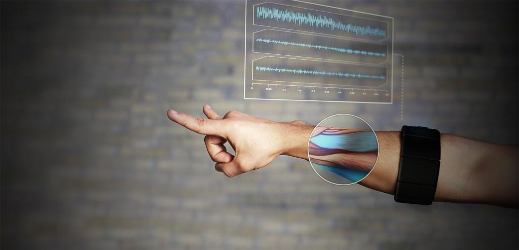 myo_alpha_arm_and_signal